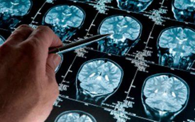 Secuencian el genoma de mil personas para estudiar el Alzheimer en la Argentina