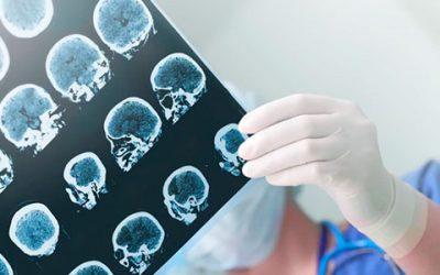 Por primera vez, buscaron identificar el riesgo genético de padecer Alzheimer en casi mil argentinos