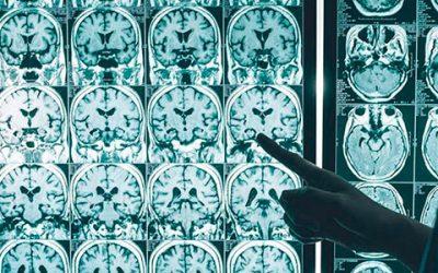 Alzheimer: por primera vez, secuencian el genoma de casi 1000 argentinos