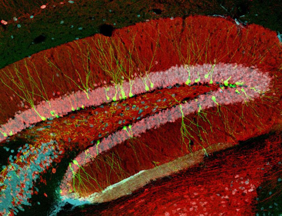Imagen obtenida por microscopía confocal, correspondiente a un corte de hipocampo obtenido de ratones adultos. En verde fluorescente pueden observarse neuronas granulares inmaduras (21 días de edad) generadas en el cerebro adulto. Para marcar y visualizar las neuronas nuevas, los investigadores emplean un retrovirus como herramienta para insertar en el genoma de las células en división (neuronas nuevas) el gen de la proteína verde fluorescente (GFP).