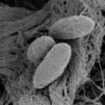 Bacterias de Rhizobium leguminosarum.