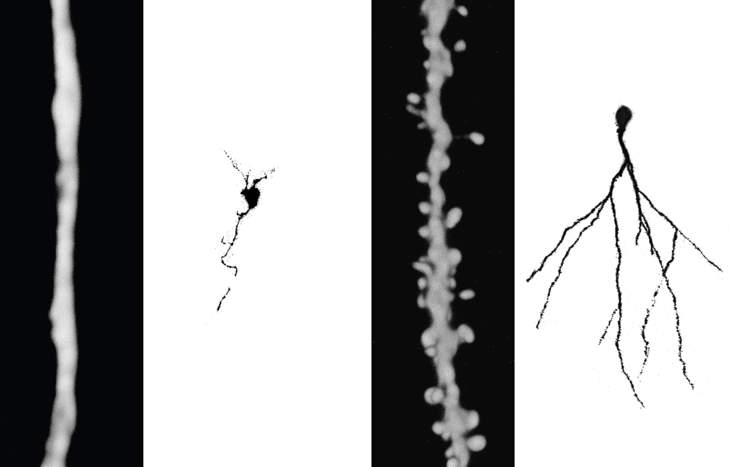 En los ratones viejos sedentarios las dendritas de las neuronas se desarrollaron menos que en los ratones corredores. Además en este último grupo se generaron espinas a través de las cuales las neuronas se enchufan al circuito.