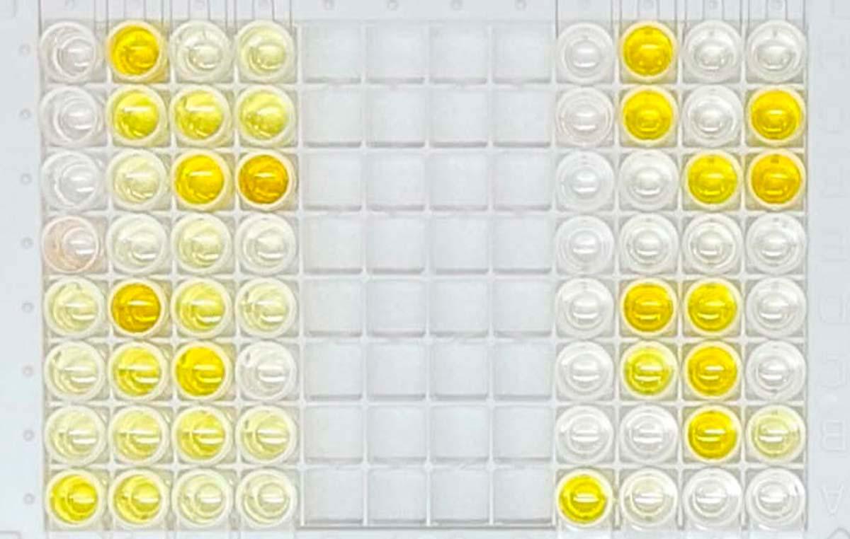 """Los test COVIDAR se realizan en placas que tienen inmovilizadas proteínas del coronavirus que sirven de """"carnada"""" para ¨pescar¨ los anticuerpos que se encuentran en los sueros, de modo tal que puedan ser identificados y cuantificados por un método enzimático que produce color."""